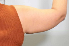 non-surgical-body-sculpting-arm-lift-1-before