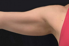 non-surgical-body-sculpting-arm-lift-2-after
