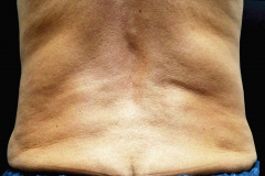 non-surgical-body-sculpting-back-1-before