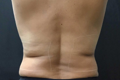 non-surgical-body-sculpting-back-2-before