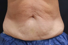 non-surgical-body-sculpting-stomach-1-after