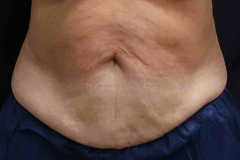 non-surgical-body-sculpting-stomach-1-before