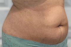 non-surgical-body-sculpting-stomach-2-before