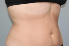 non-surgical-body-sculpting-stomach-5-after