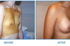 Breast-Implant13