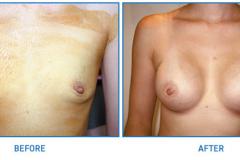 Breast-Implant14