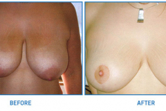 Breast-Reduction10