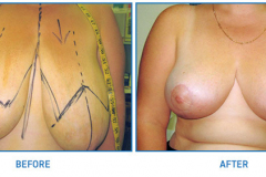 Breast-Reduction11