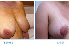 Breast-Reduction13