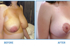 Breast-Reduction17