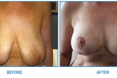 Breast-Reduction20