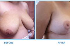 Breast-Reduction21