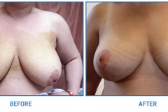Breast-Reduction22