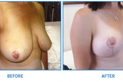 Breast-Reduction23