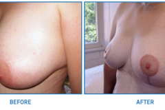 Breast-Reduction25