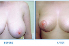 Breast-Reduction7