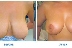 Breast-Reduction9