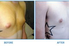 Breast-Lipo1