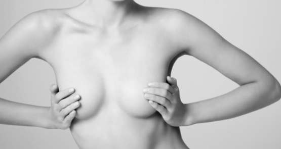 Reducing Breast Size Can Benefit Your Health & Wellbeing