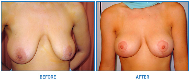 Breast Implnts