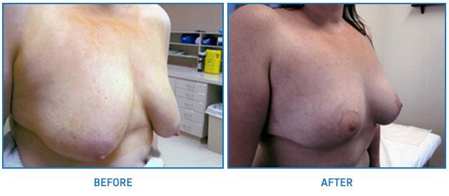 breast-lift