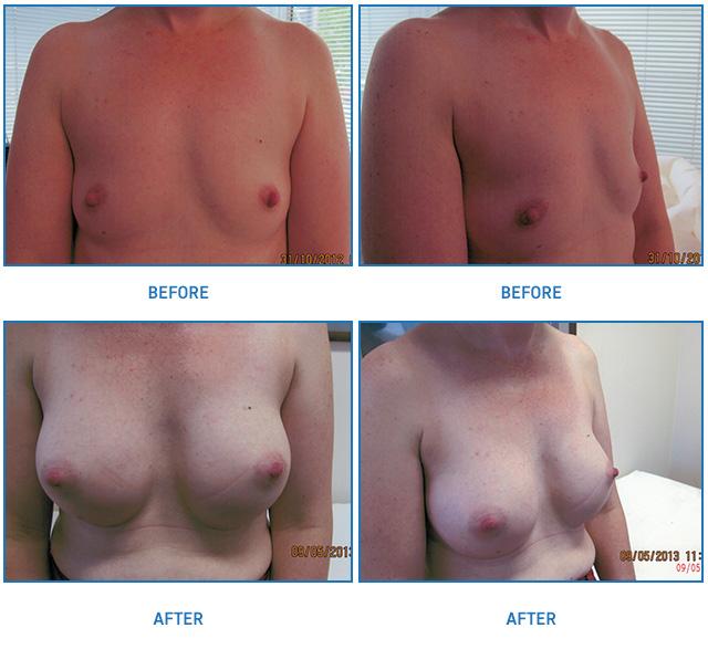 breast implants