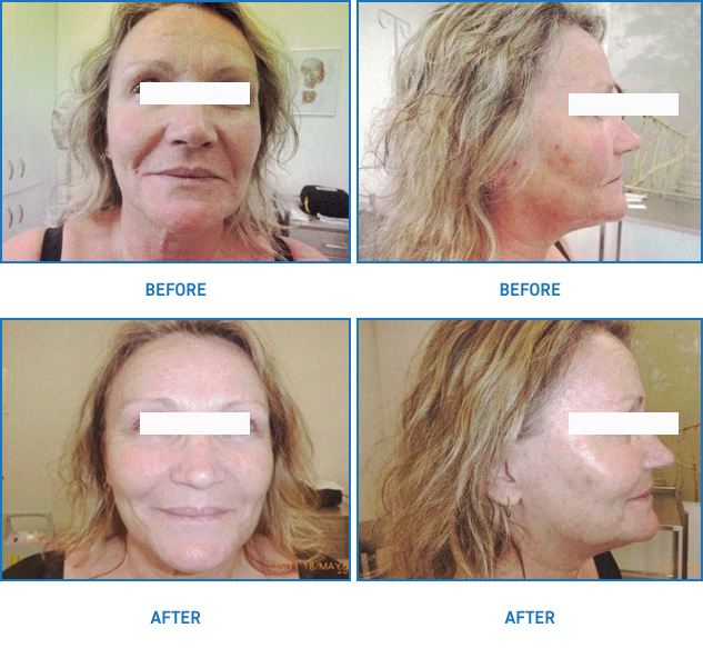 Thread Lift | Mini Face Lift Before and After | Patient01 | Dr Margaret Anderson