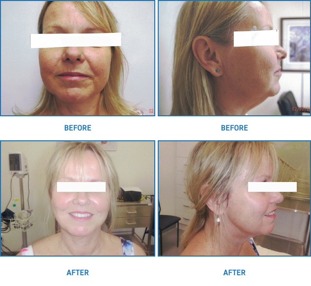 Thread Lift | Mini Face Lift Before and After | Patient02 | Dr Margaret Anderson