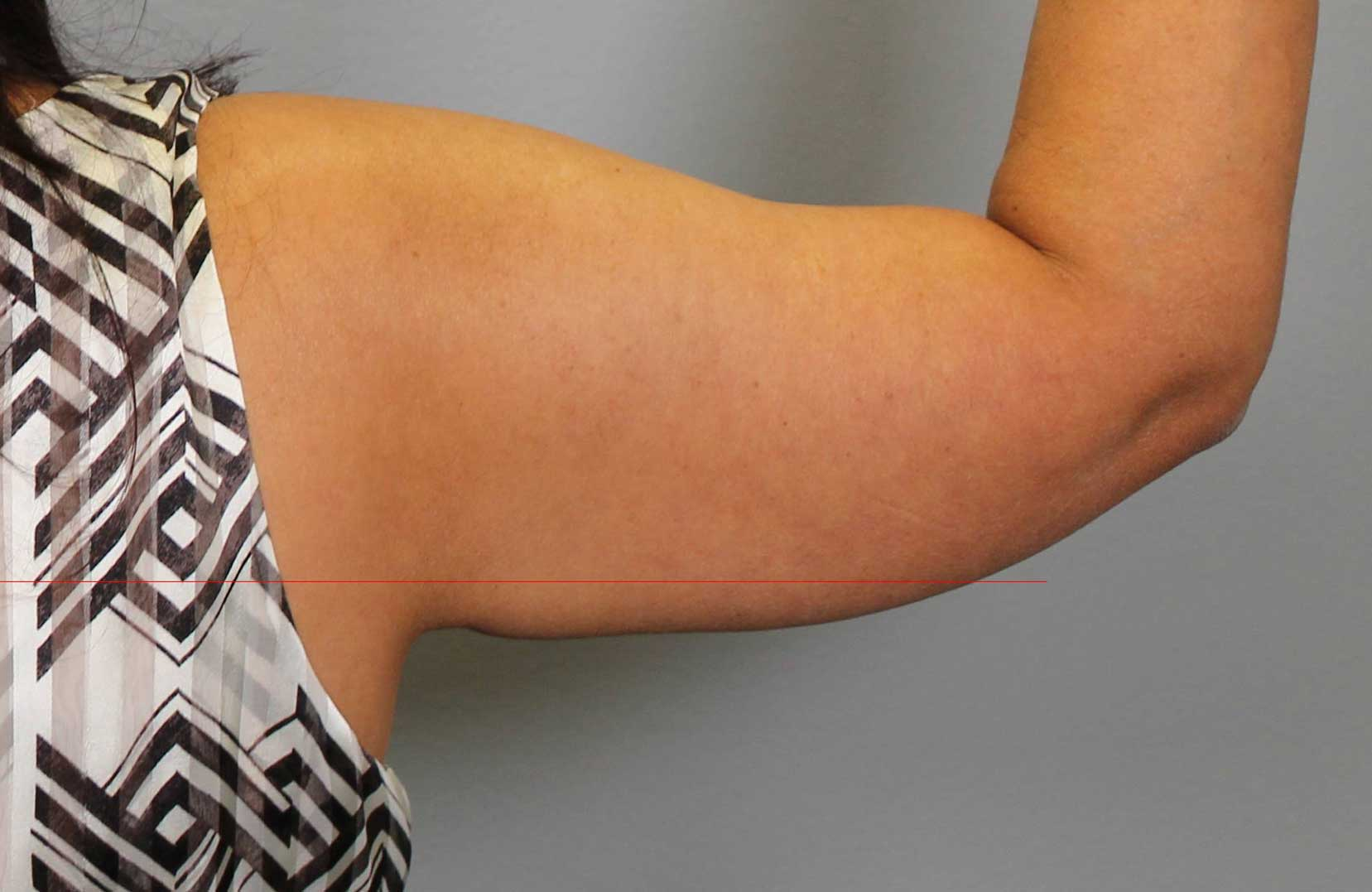 non-surgical-body-sculpting-arm-lift-1-after