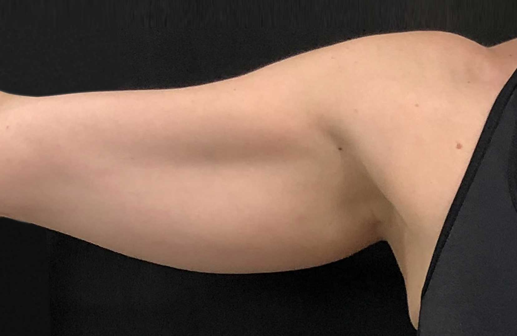 non-surgical-body-sculpting-arm-lift-2-before