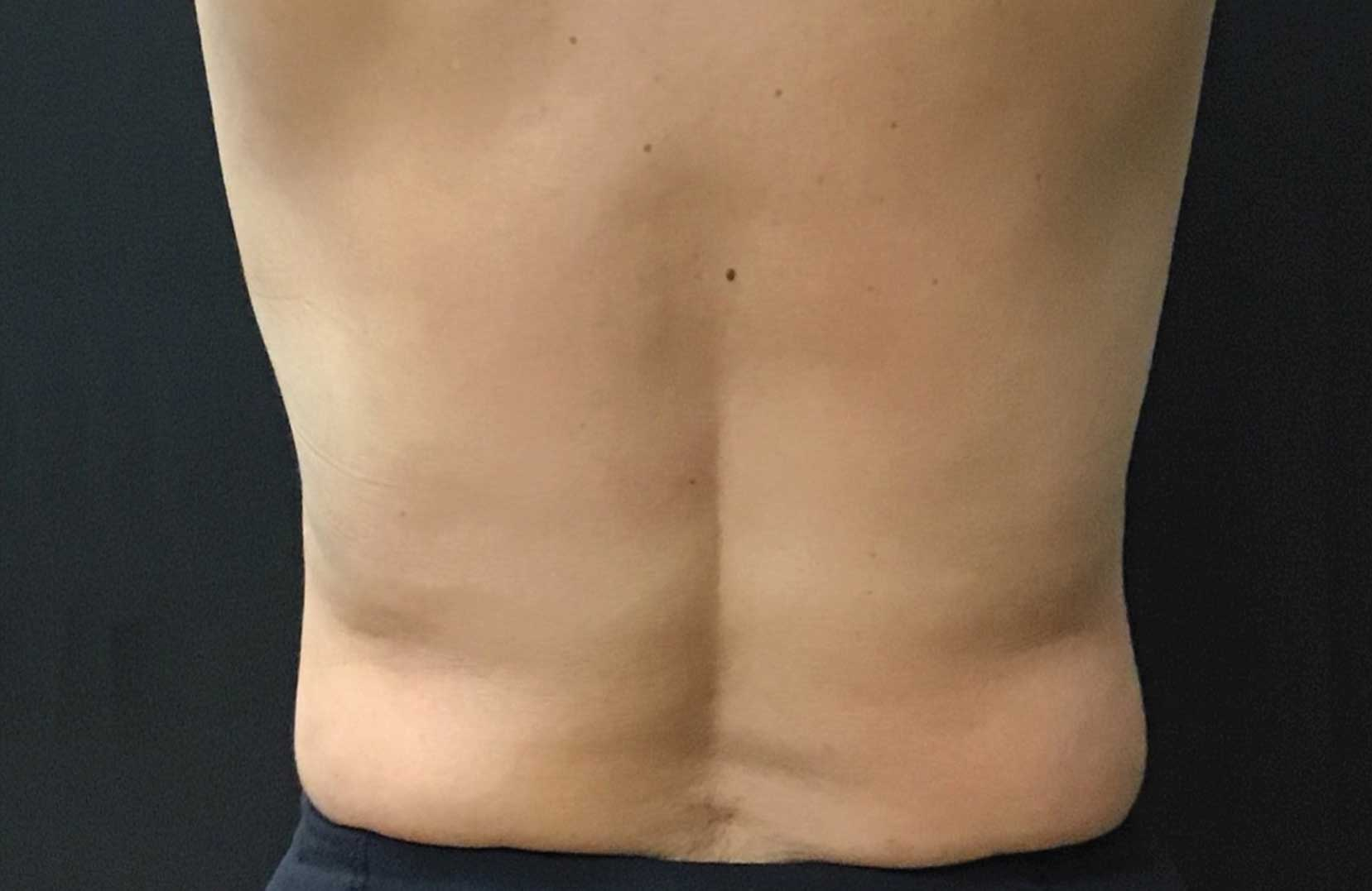 non-surgical-body-sculpting-back-2-after