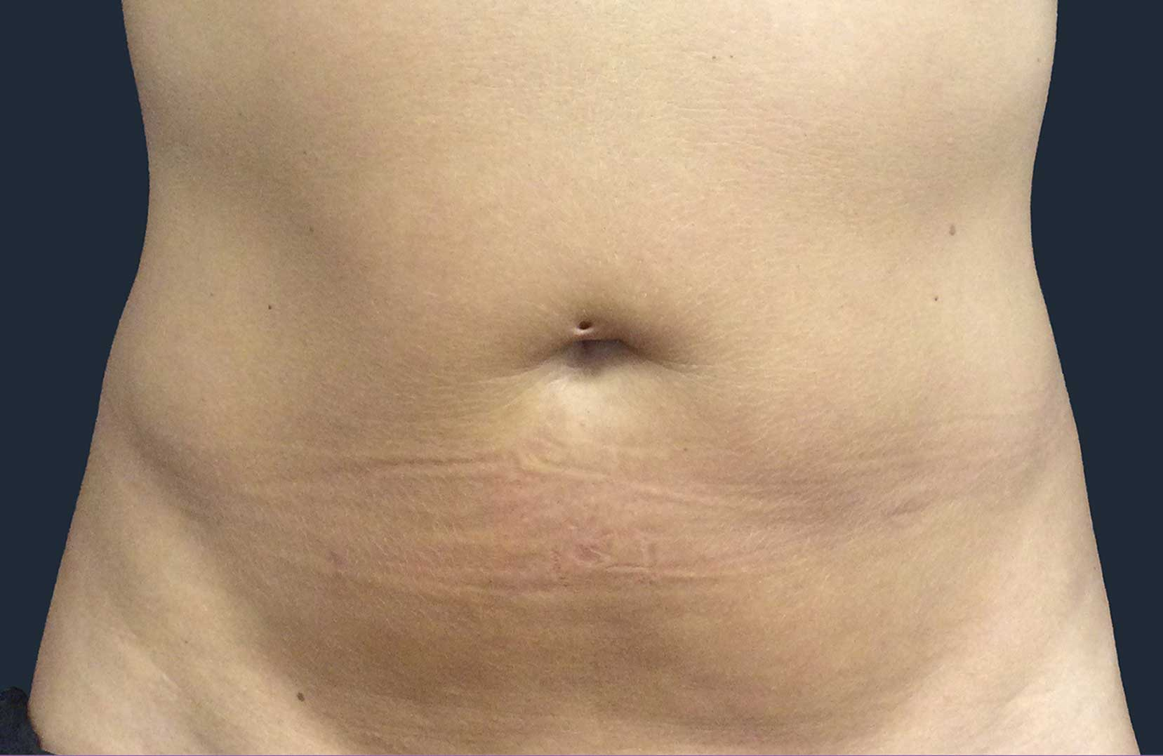 non-surgical-body-sculpting-stomach-3-after