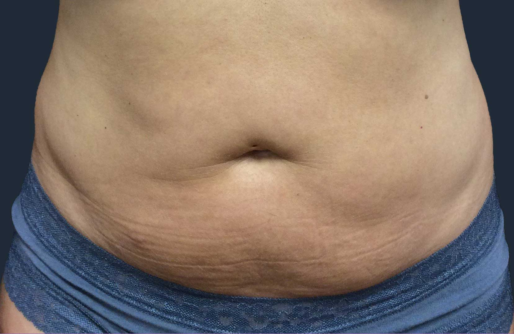 non-surgical-body-sculpting-stomach-3-before