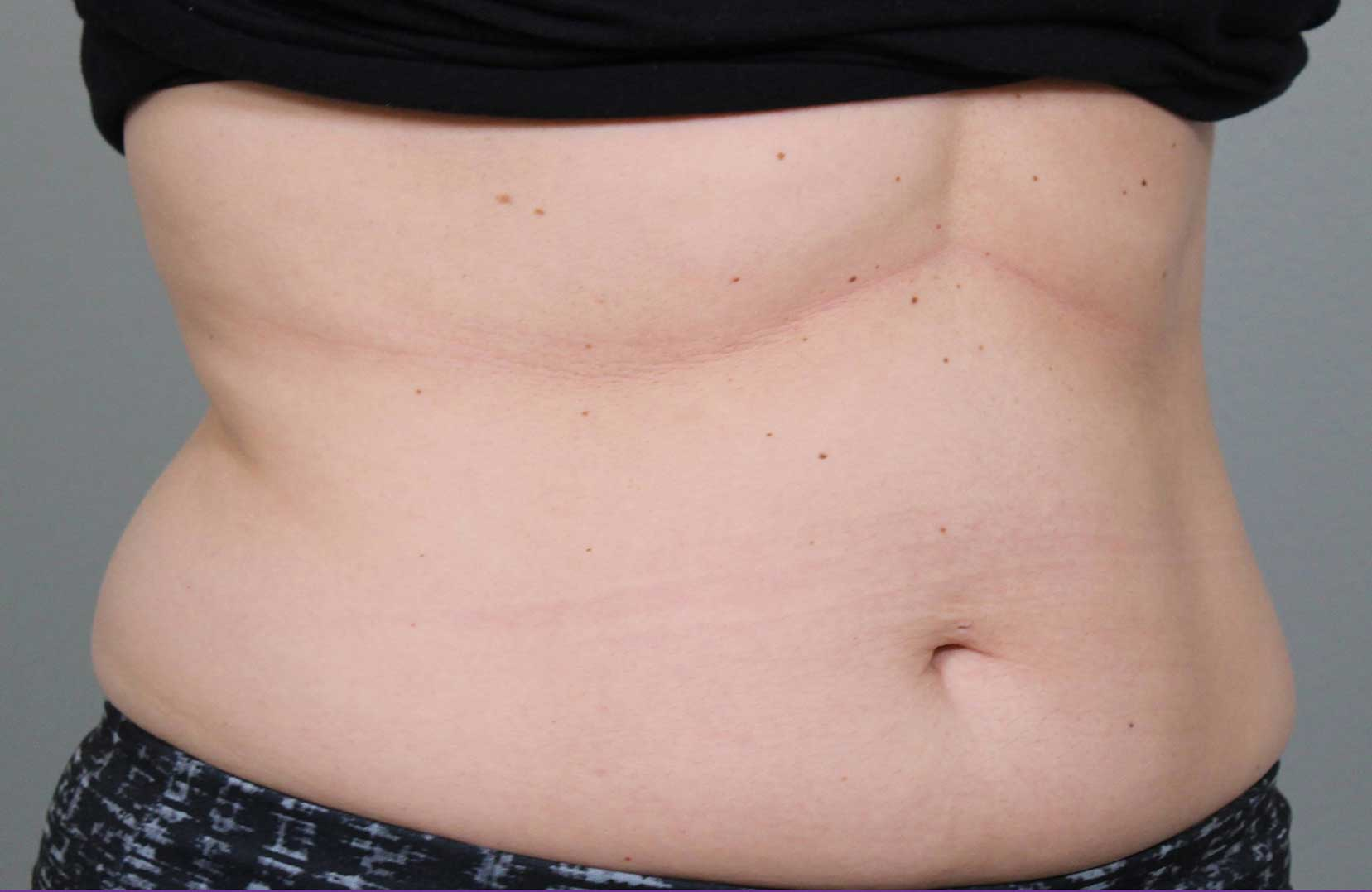non-surgical-body-sculpting-stomach-5-before