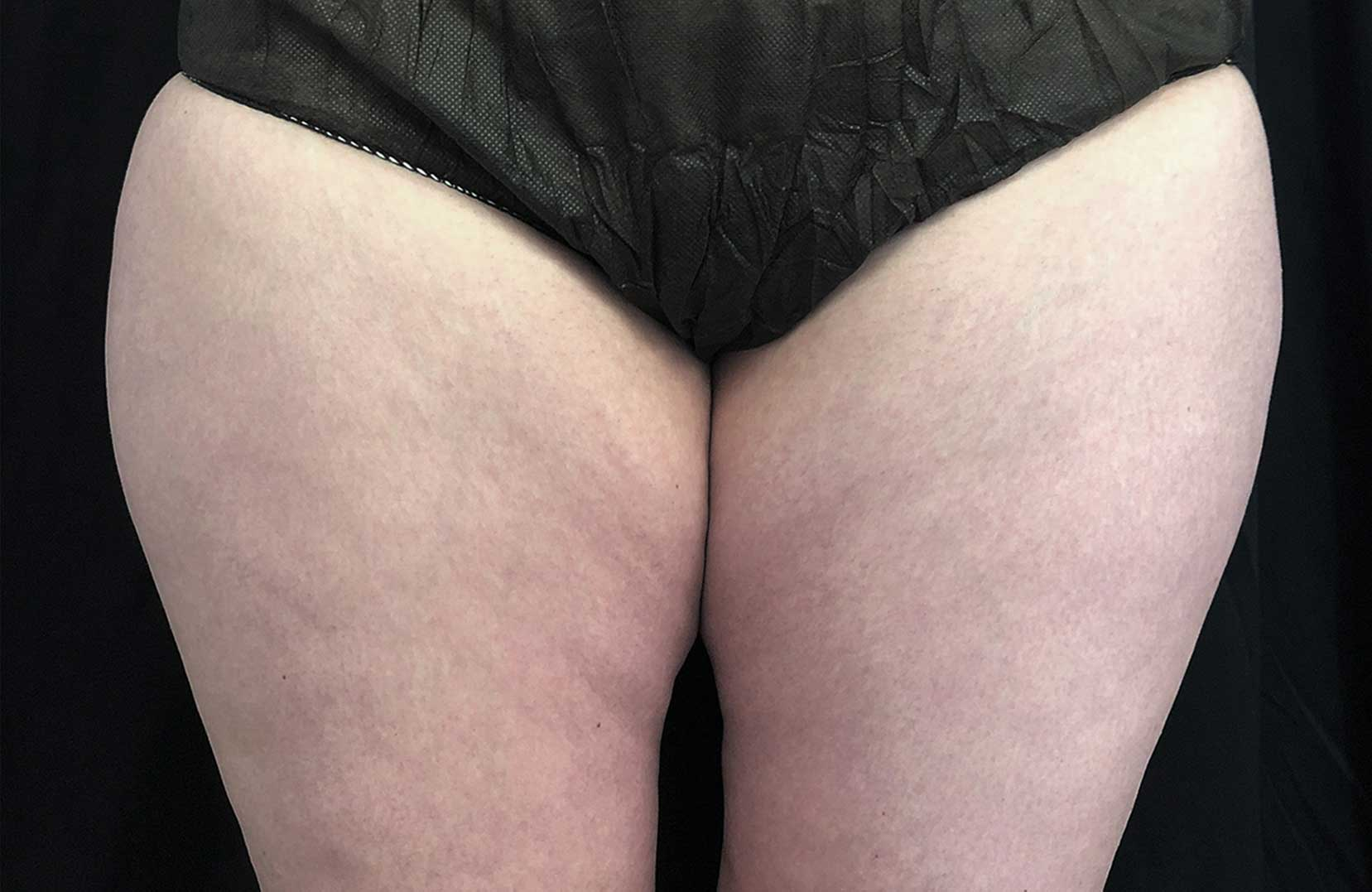 non-surgical-body-sculpting-thigh-1-after