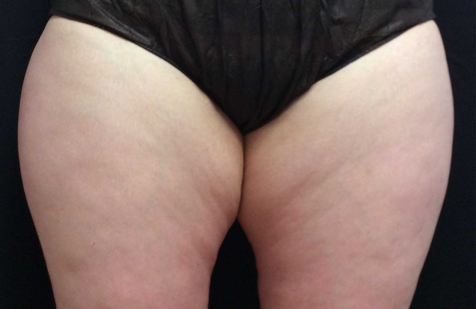 non-surgical-body-sculpting-thigh-1-before