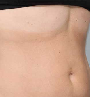 Non-Surgical Stomach Reduction