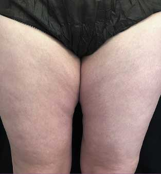 Non-Surgical Thigh Reduction