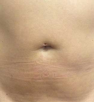 Non-Surgical Tummy and Waist Fat Reduction