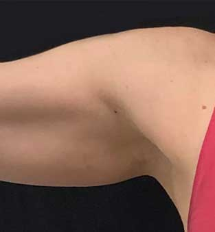 Non-Surgical Under Arm Fat Reduction